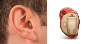 CIC (Completely In The Canal) Hearing Aid